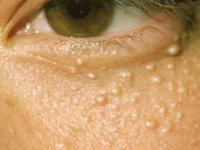 Milia (hard white milk spots) Milia are often called milk spots are actually keratin-filled cysts that appear under the epidermis.