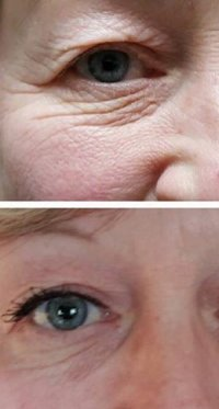 Skin tightening around eyes