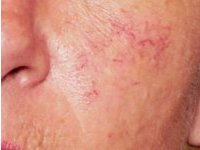 Thread & Spider Veins Broken capillaries appear as wavy red lines (thread veins), red spots, or as red spots with thin red lines radiating from them (spider veins). They may appear on face, body or legs and can be treated by diathermy.